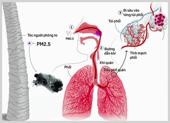 Tác hại khôn lường từ ô nhiễm không khí đến sức khỏe - Ảnh 2.