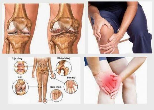 9 căn bệnh về xương khớp phổ biến nhất và phương pháp điều trị